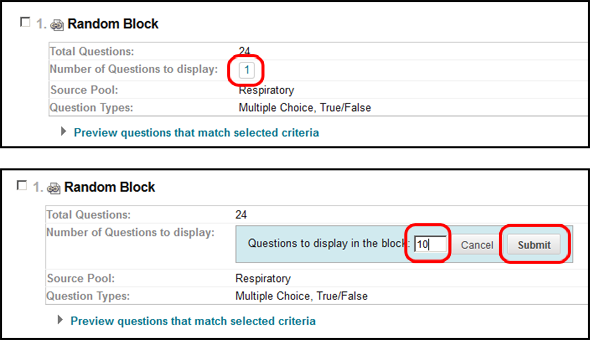 Select number of Random Block Questions